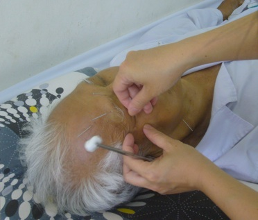 acupuncture paralysie faciale Vietnam